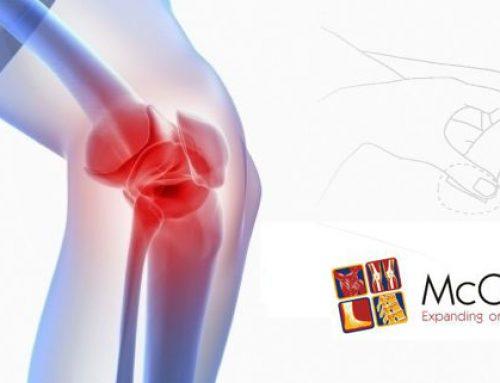 Kocepcja McConnell w leczeniu bólu stawu kolanowego